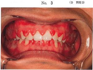 症状 子供 初期 白血病 急性リンパ性白血病(ALL) Q&A│小児がん